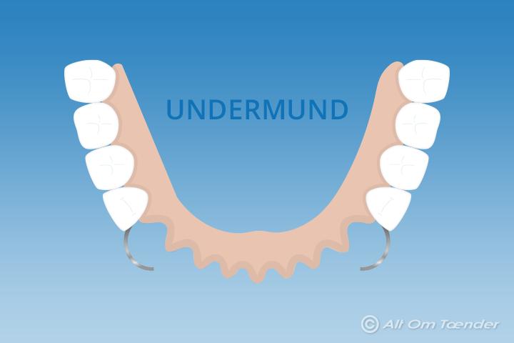 fixativ för tandprotes