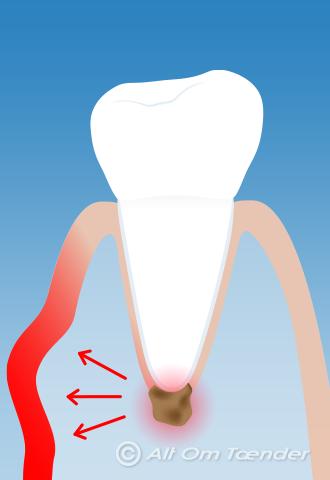 tandinfektion som sprider sig i kroppen