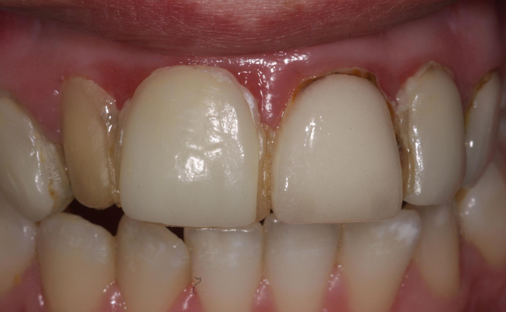 vad är parodontit